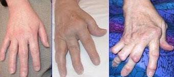 arthrite-rhumatoide
